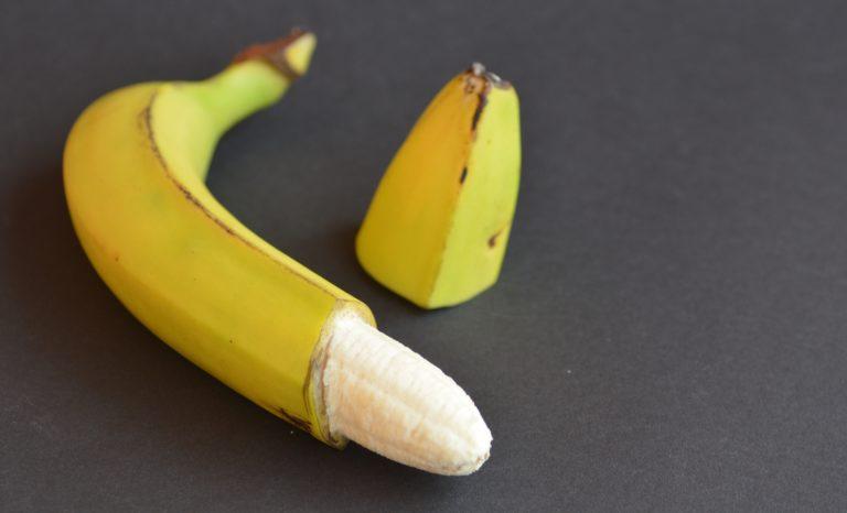 Omskärelse tillhör medeltiden!